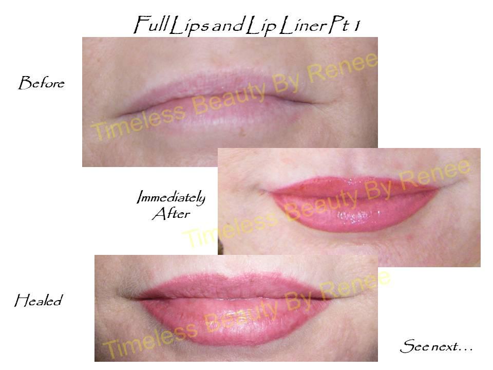 ... laser hair removal, IPL, intense pulse light, laser vein, skin