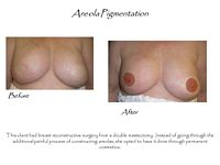 permanent makeup areola reconstruction