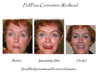 permanent makeup correction fix