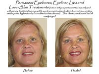 permanent makeup and anti-aging and laser skincare